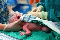 Kaiserschnitt Baby iStock 1joe