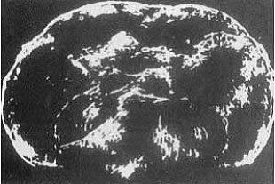 Ultraschallbild von 1974