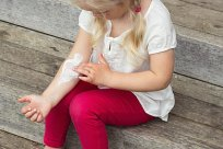 Kind Neurodermitis
