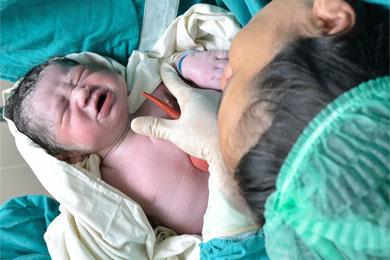 Kaiserschnitt Mutter assistiert