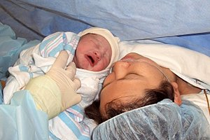 Baby Mutter nach Kaiserschnitt