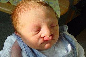 Baby Hasenscharte