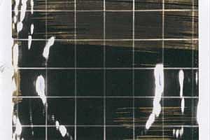 Ultraschallbild Roedenbeck von 1976