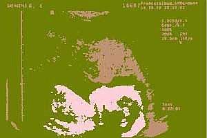 www ultraschall leinwand de
