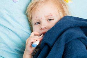 Meldung: Aufruf zur Masern-Impfung Artikelbild
