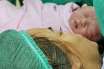 Kaiserschnitt nach Wehen