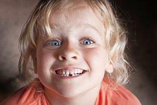 Zahnwechsel Kind