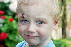 Verletztes Kind Teaser