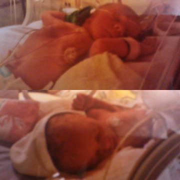 Frühchen Zwillingsjungs damals
