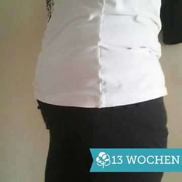 13+0 (2. Schwangerschaft)