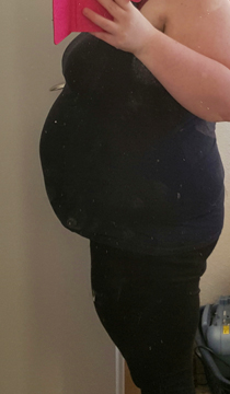 32+0 (1. Schwangerschaft)